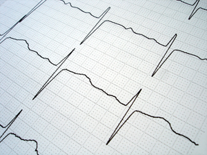 Photo of EKG tape